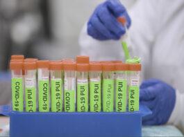 Testing Stanford Lab Covid-19